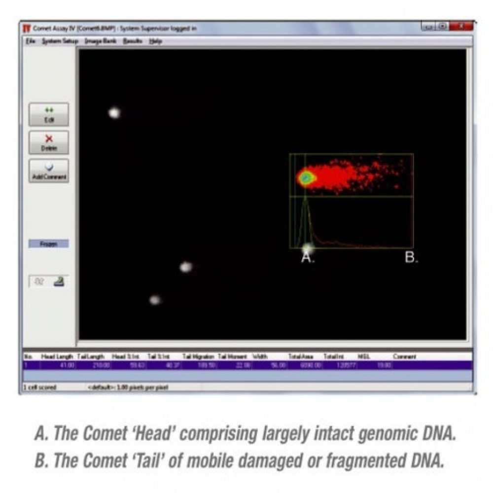 Full Screen Shot of a Comet Profile within the Comet Assay IV Software